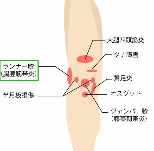 ランナー膝,腸脛靭帯炎,膝が痛い,膝の痛み,種類,場所,症状