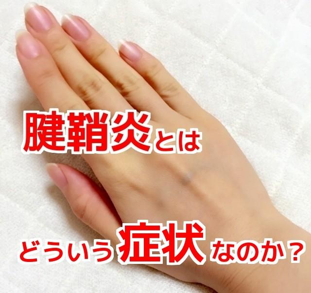 腱鞘炎とはどういう症状なのか?