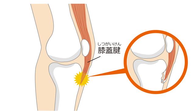 オスグッド,膝の痛み,膝の腫れ,子供