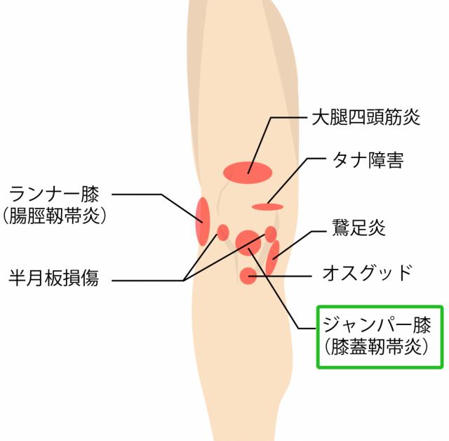 ひざ痛・膝の痛み,ジャンパー膝(膝蓋靭帯炎、膝蓋腱炎)