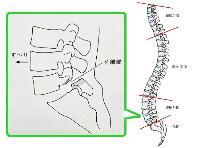 腰椎分離症,腰痛,お尻全体の痛み,太ももの裏の痛み,足にしびれ